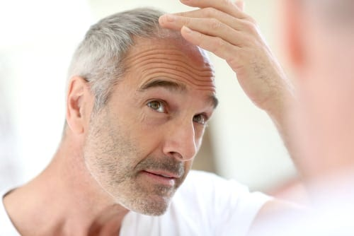 Man looking at his hair looking concerned about hair loss