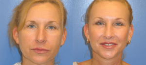 Cheek Lift and Facelift Before and After Photo