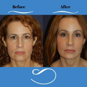 Female_Full_Face_Rejuvenation_Front-blog-ba-img