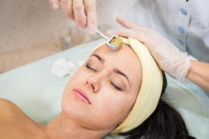 Microneedling Woman's Forehead