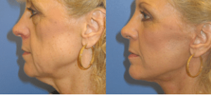 Diamond Facelift Patient Before and After photos