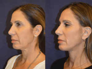 Dr. Diamond - Chin implant, fat grafting, brow lift, facelift