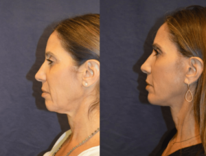 Dr. Diamond - Chin implant, fat grafting, brow lift, facelift.