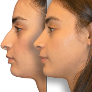 What Is The Best Technique For My Rhinoplasty Dr Jason Diamond