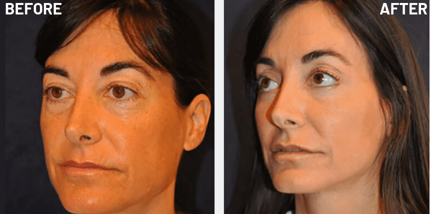 full-face-rejuvenation-patient-13