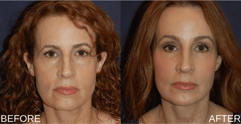 Female_Full_Face_Rejuvenation_Front-2-blog-ba-img1