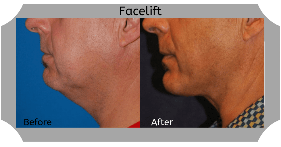Male-Facelift-05-Blog-BA-Img copy (1)