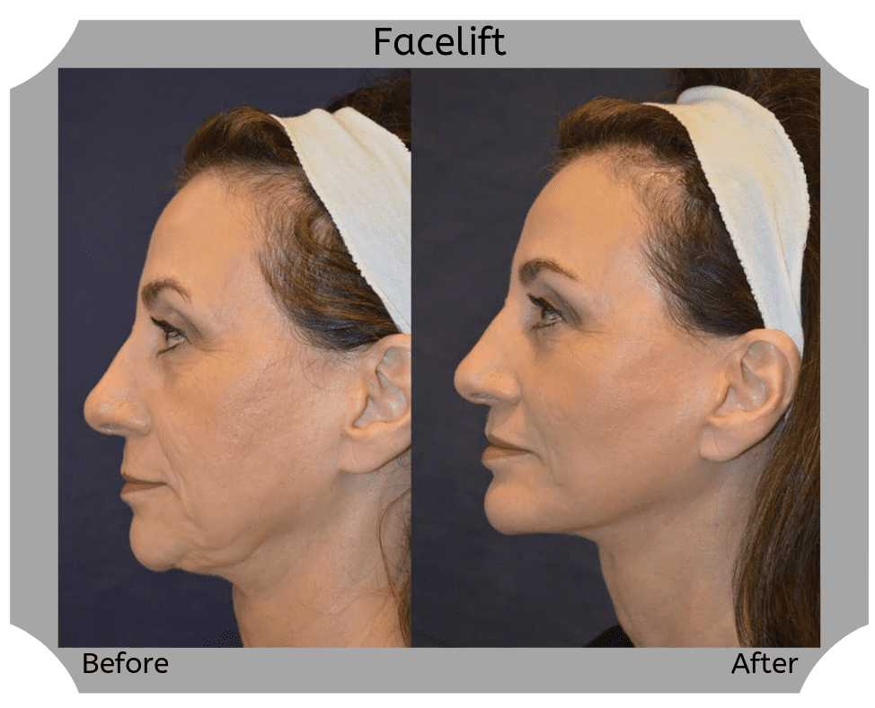 facelift-2-Blog-BA-Img copy (1)