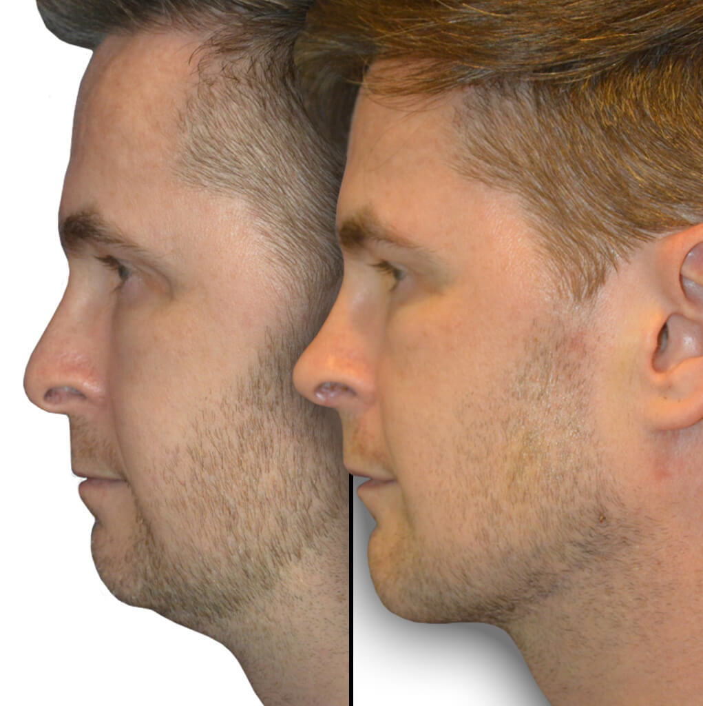 Before and After Patient Revision Rhinoplasty, Chin Implant & Jaw Implant (The Diamond Tripartite)