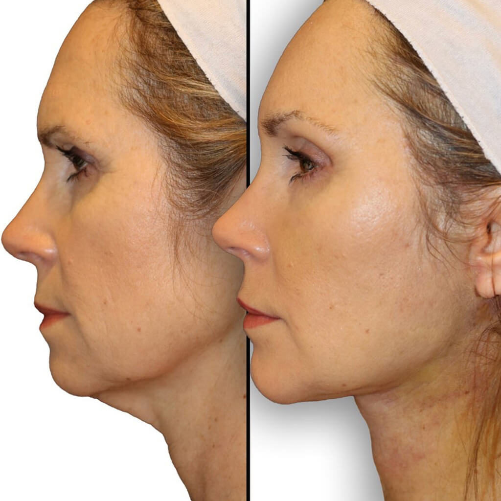 Diamond Facial Rejuvenation with a Facelift & Necklift before and after results