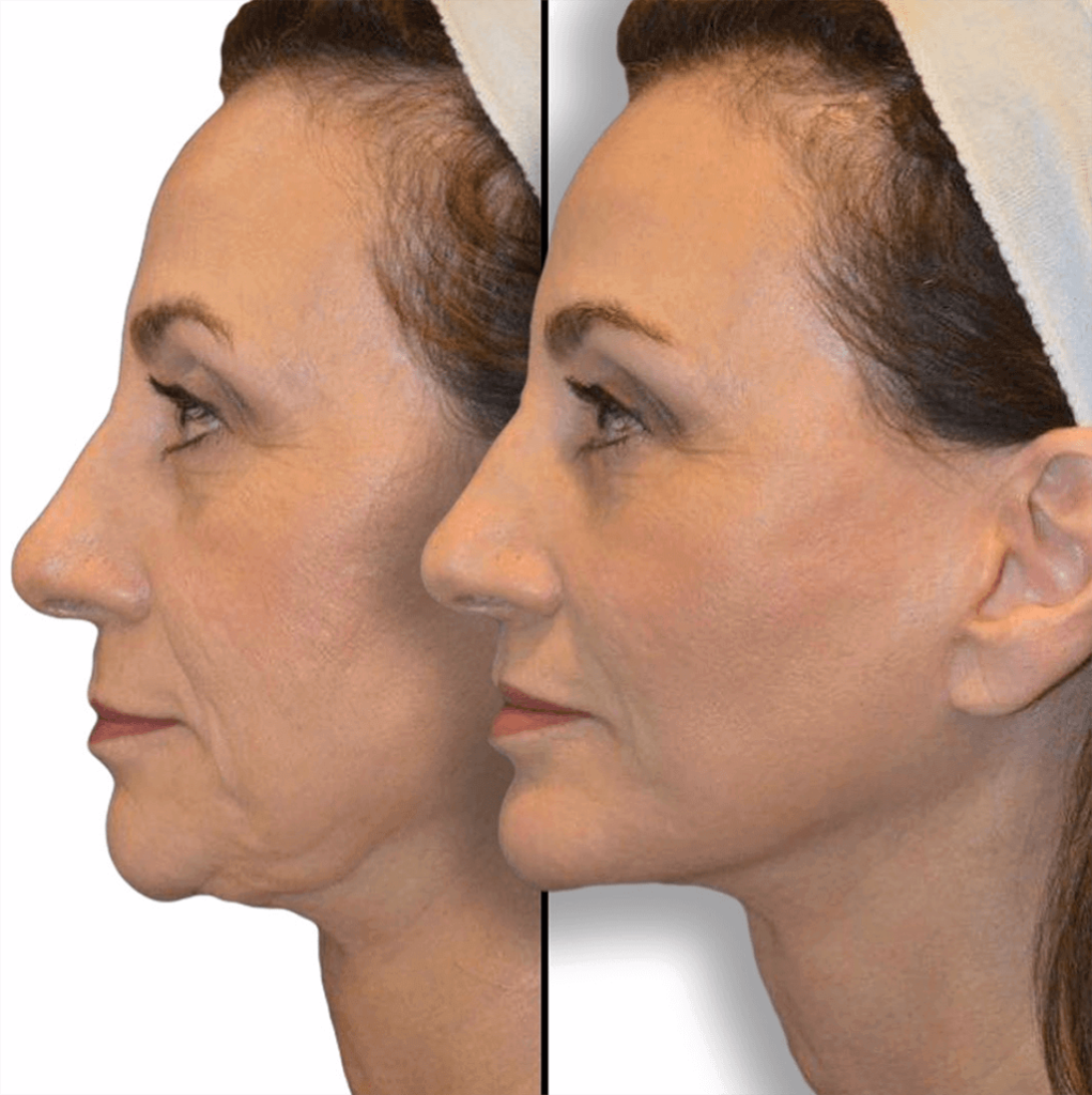 Before and after Female, Revision Facelift, Neck Lift, Chin Augmentation, Lip Lift, Facial Fat Grafting