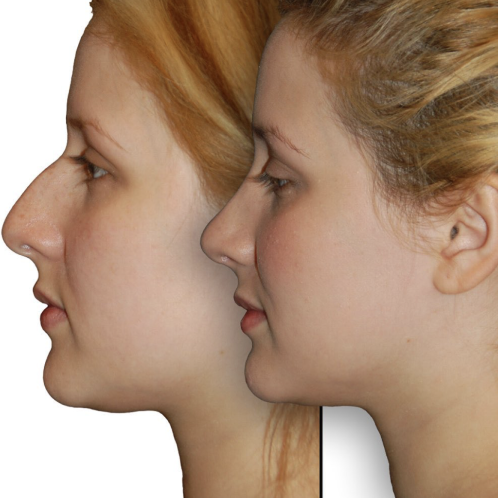 Before and after Primary Rhinoplasty Surgery