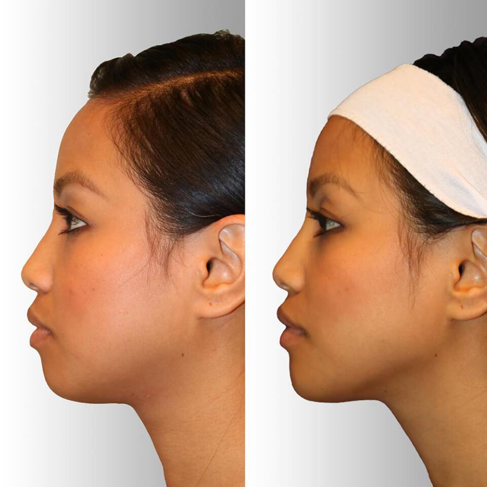 Diamond Facial Sculpting™