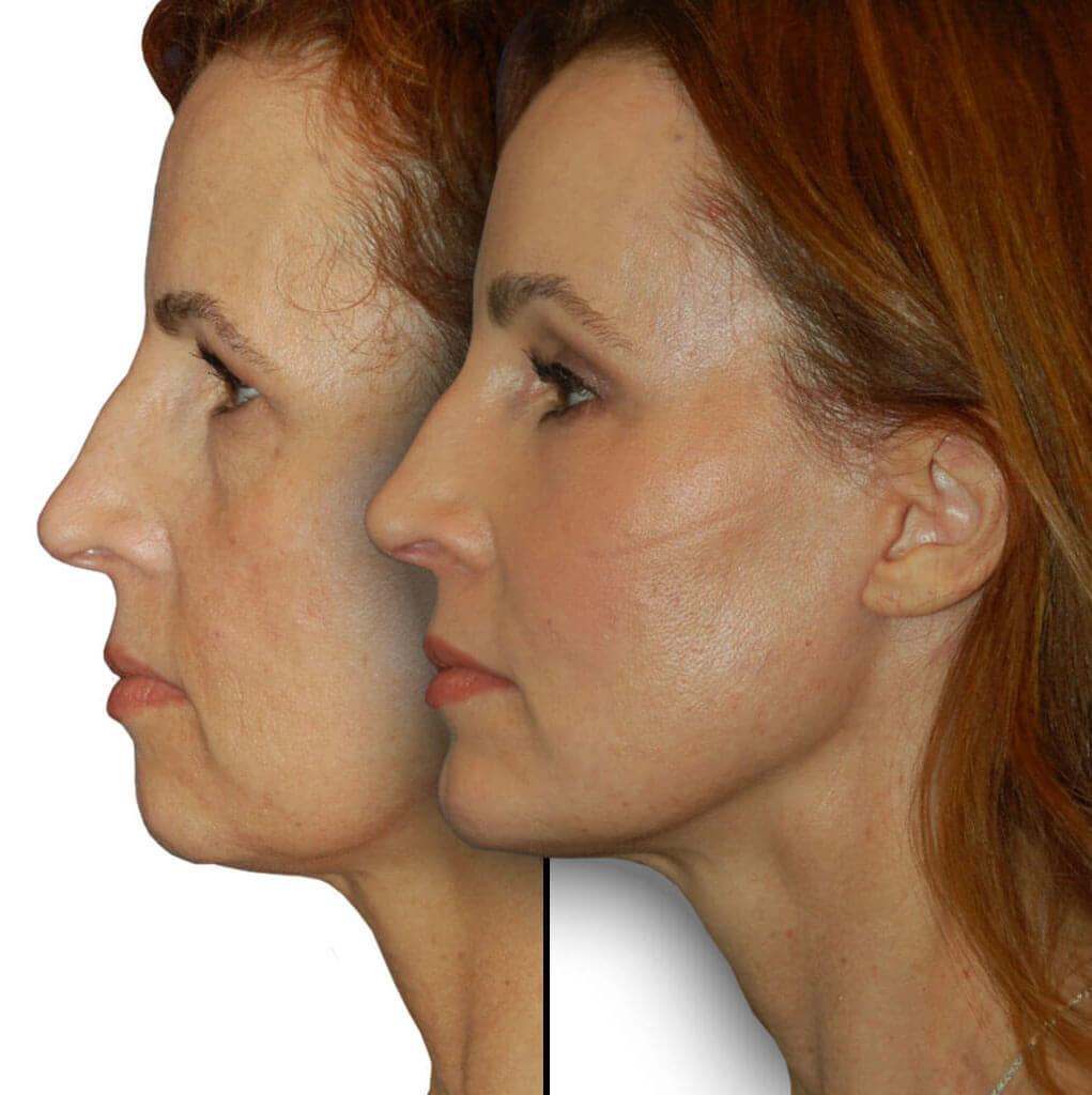 Before and After Patient: Female, Upper Blepharoplasty, Lower Blepharoplasty, Facelift, Neck Lift, Brow Lift, Chin Augmentation, Facial Fat Grafting, CO2 Laser Rejuvenation.