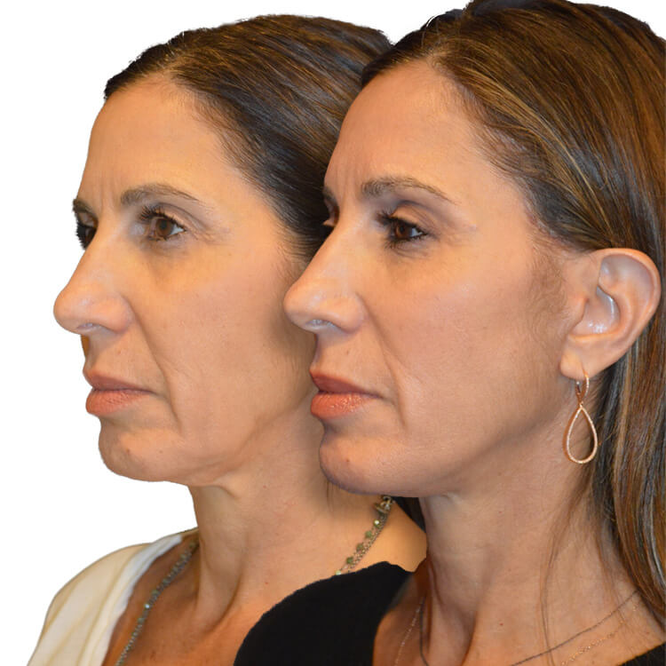Before and after Female, Facelift, Brow Lift, Chin Implant, and Facial Fat Grafting
