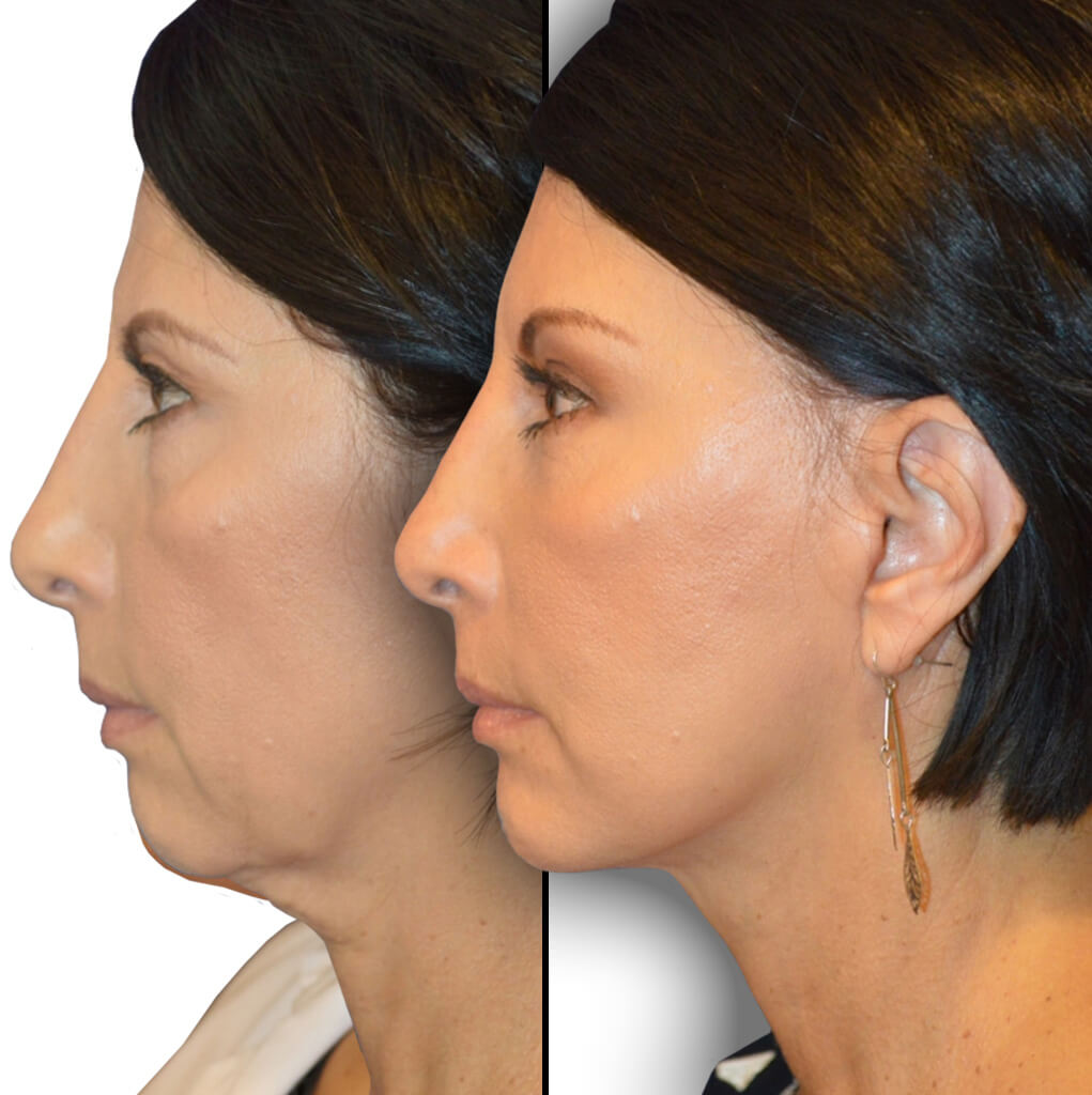 Before and After Patient: Female, Brow Lift, Facelift, Neck Lift, Chin Augmentation, Upper Blepharoplasty, Lower Blepharoplasty, Facial Fat Grafting