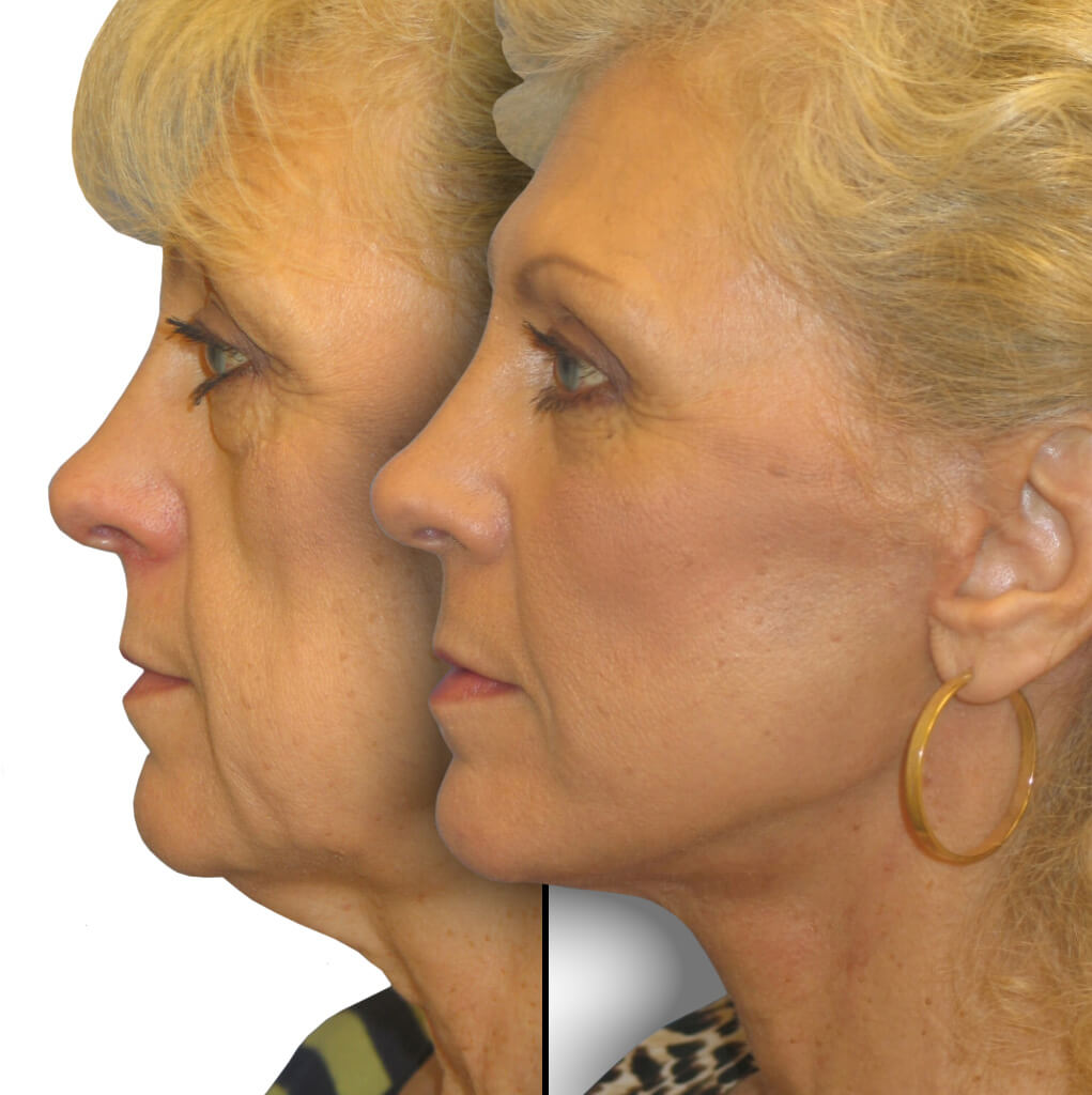 Before and After Patient: Female, Lower Blepharoplasty, Facelift, Neck Lift, Brow Lift, Facial Fat grafting, Cheek Lift, Chin augmentation