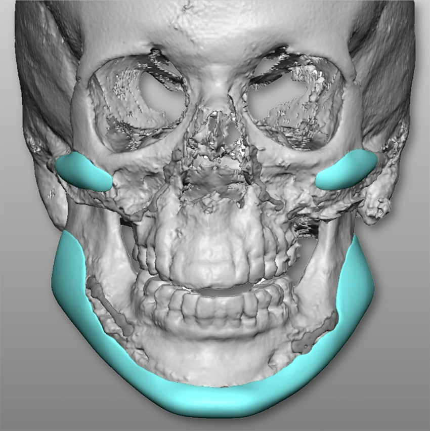 The Diamond Tripartite™ implant imaging