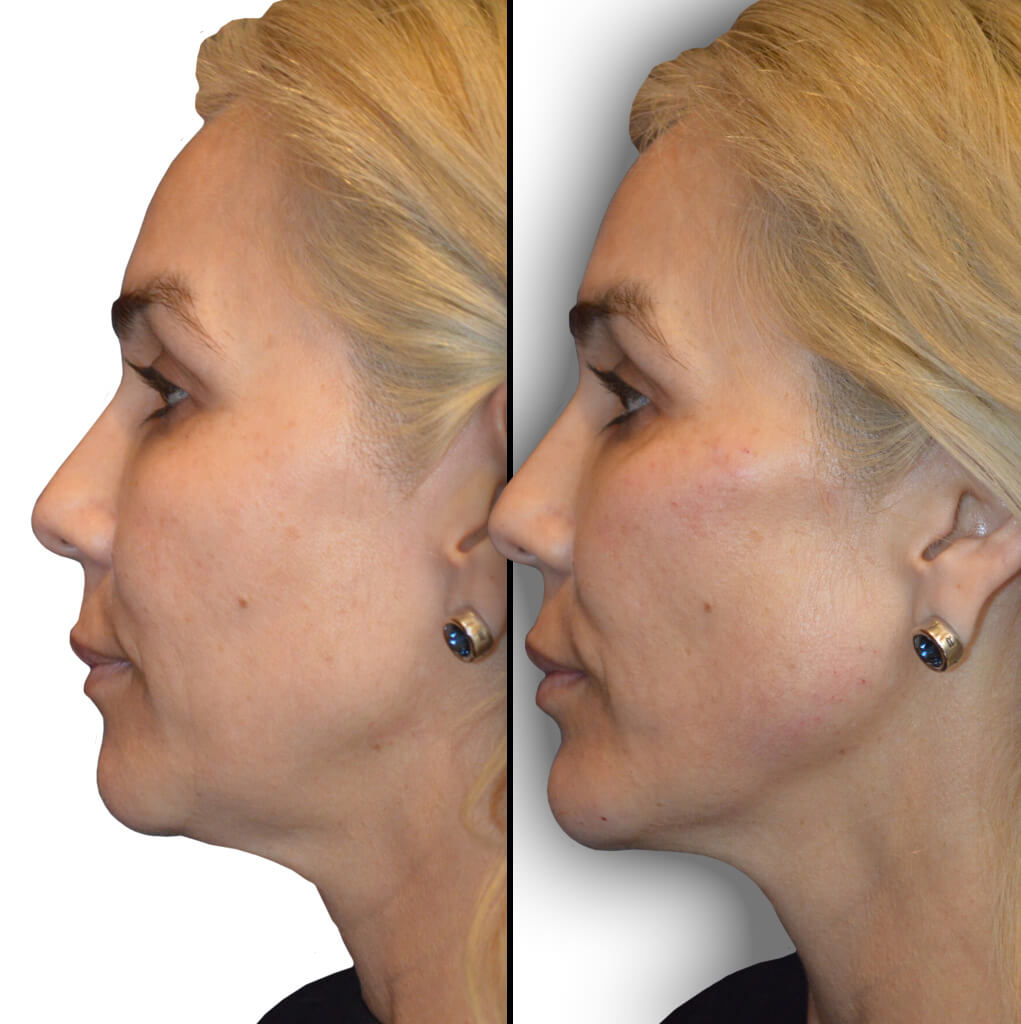 Diamond Facial Sculpting Before and After