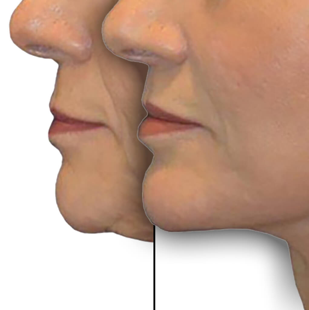 Before and After Patient: Female, Lip Lift, Revision Facelift, Neck Lift, Chin Augmentation and Facial Fat Grafting