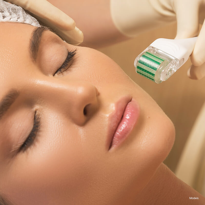 microneedling-featured-model