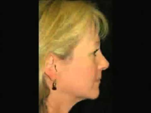 Dr Jason Diamond -- Miraculous Midface Rejuvenation